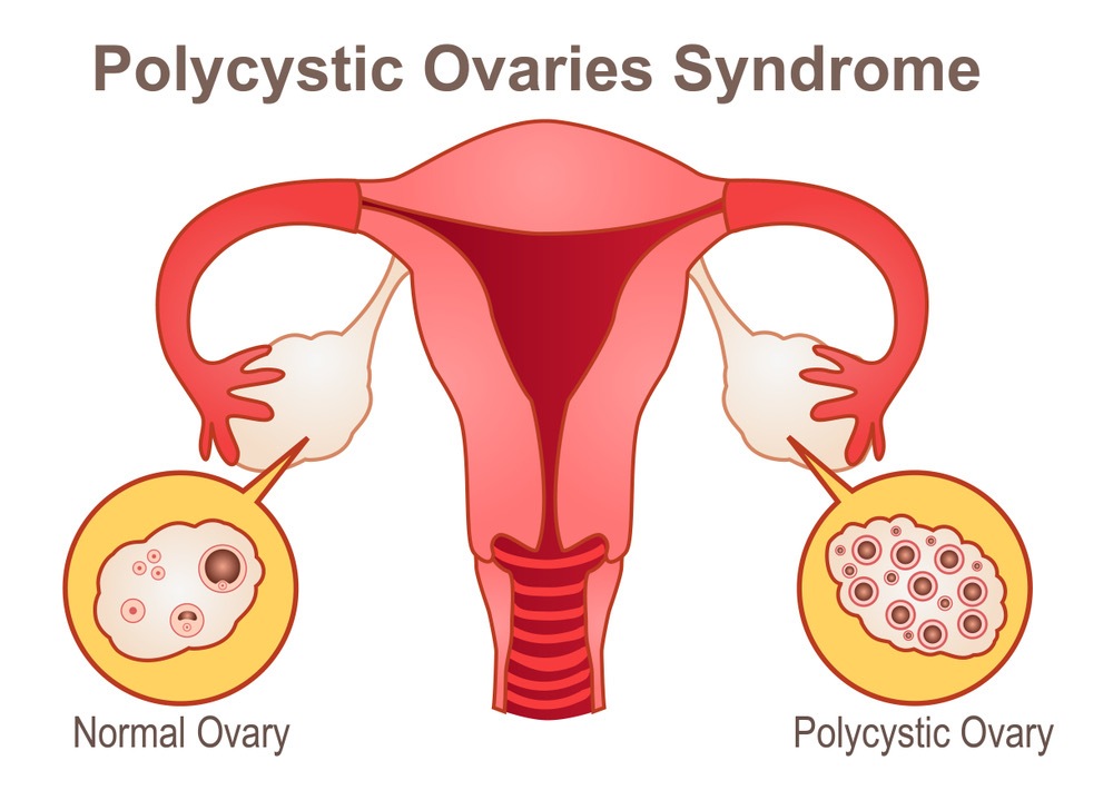 תסמונת השחלות הפוליציסטיות (PCOS-Poly Cystic Ovary Syndrome)